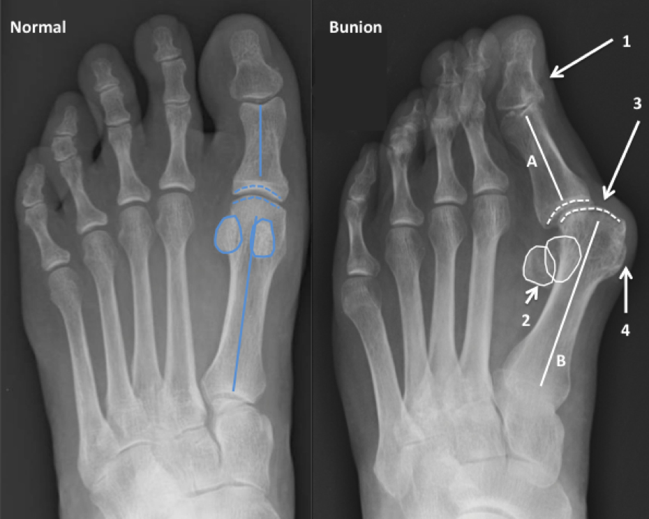 Seaview Orthopaedic Bunion