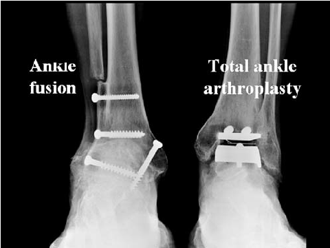 Seaview-Orthopaedic-arthrodesis-right-and-left-ankle-arthroplasty